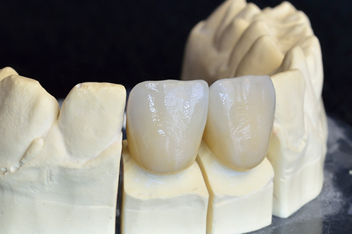 Dental Crowns in Amarillo