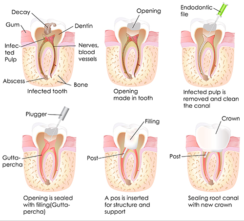 Root Canal in Amarillo