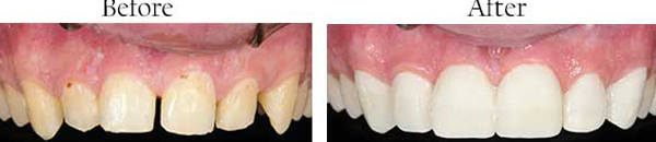 Dental Images in Amarillo