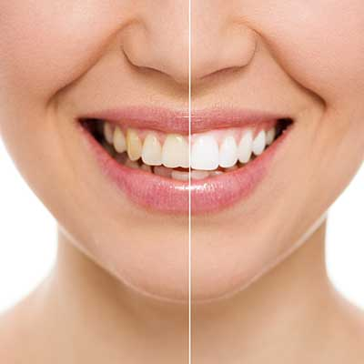 Teeth Whitening Amarillo